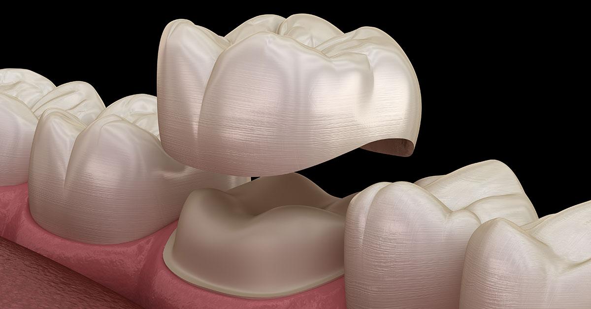 Crown Cap Dental Repair