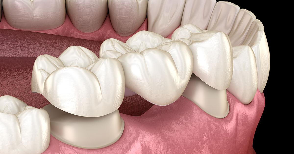 Dental Bridges Replace Missing Teeth