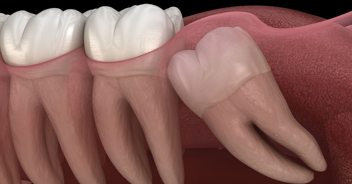 Impacted Molar Canine Teeth