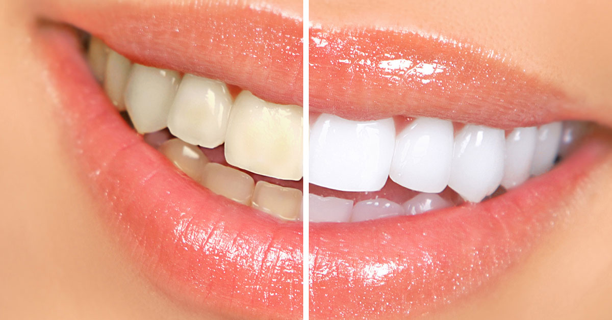 Tooth Whitening to Brighten Your Smile